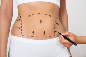 abdominoplastia en Colombia - señales